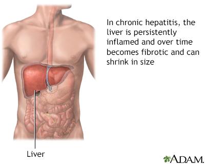 Aggressive hepatitis