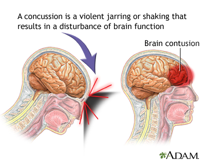 Concussions Are Brain Injuries Sit Your >> Concussion Penn Medicine