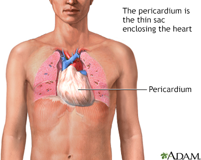 Pericarditis After Heart Attack Penn Medicine