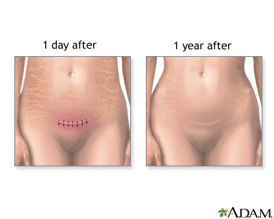 ... removed after about four days) to close the incision in your abdomen