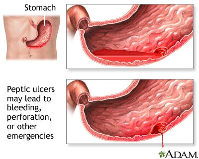 Peptic Ulcer Disease Penn Medicine