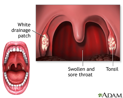 Strep Throat Streptococcal Pharyngitis Penn Medicine
