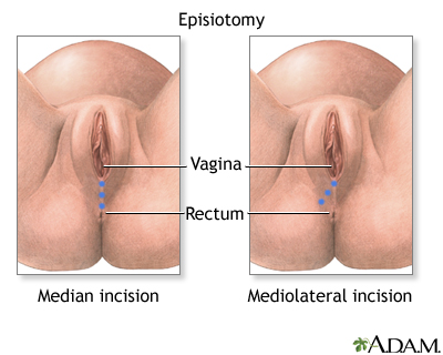 Not vaginal opening swelling right after sex consider